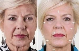 Rejuvenecimento Celular facial o corporal
