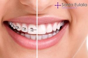 Ortodoncia brackets metálicos o estéticos